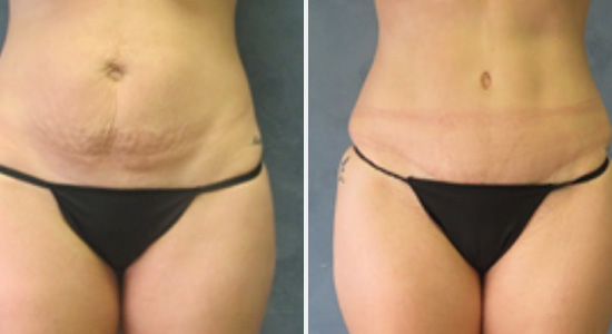 Before after abdominoplasty