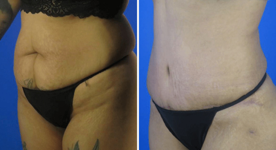 Before and After Mommy Makeover Abdominoplasty Dr Nikko Houston TX