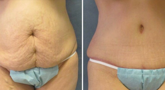 Before and After Mommy Makeover Dr Nikko Houston TX