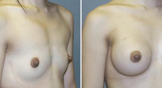Breast Augmentation DrNikko Cosmetic Surgery Houston TX