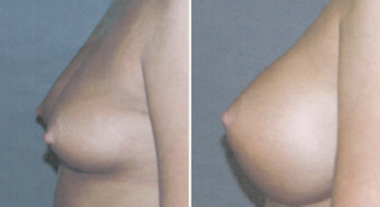 Breast Augmentation DrNikko Houston