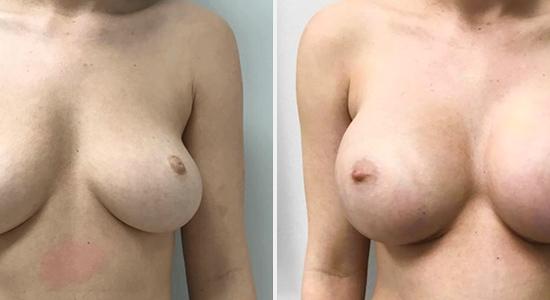 Breast Augmentation DrNikko Houston TX