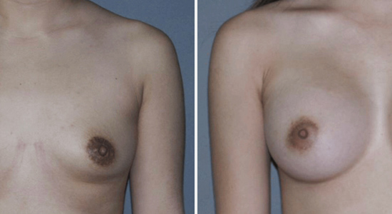 Dr Nikko Cosmetic Surgery Breast Augmentation Houston TX