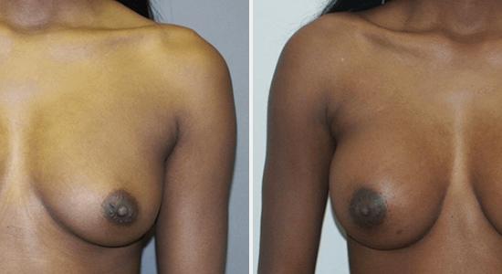 Breast Augmentation Dr Nikko Cosmetic Surgery