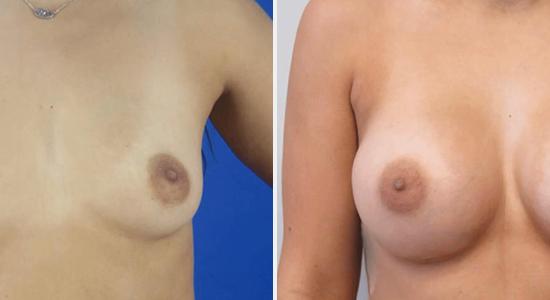 Dr Nikko Breast Augmentation Surgery Houston TX