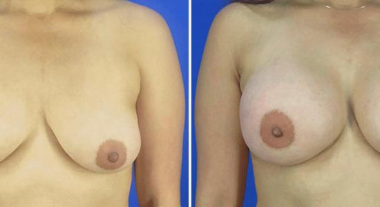 DrNikko Breast Implant Houston TX