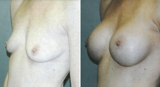 Breast Augmentation Dr Nikko Houston TX