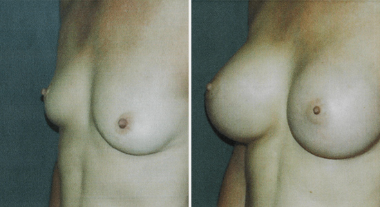 Before and After Breast Augmentation Natural Dr Nikko Cosmetic Surgery Houston TX