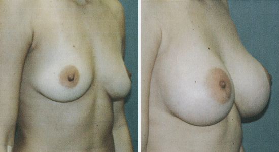 Before and After Breast Augmentation Dr Nikko Cosmetic Surgery Houston TX