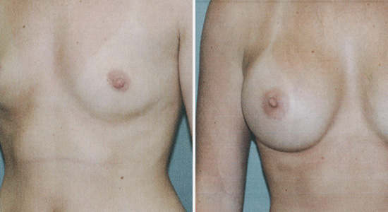Before and After Breast Augmentation Surgery Dr Nikko Houston TX