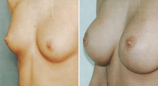 Before After Breast Augmentation Dr Nikko Houston TX