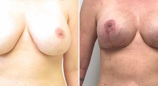 Before After Breast Augmentation DrNikko Houston TX