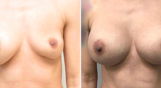 Before and After Breast Augmentation DrNikko Houston TX