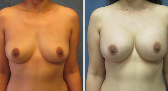 Before and After Breast Augmentation Dr Nikko Houston TX