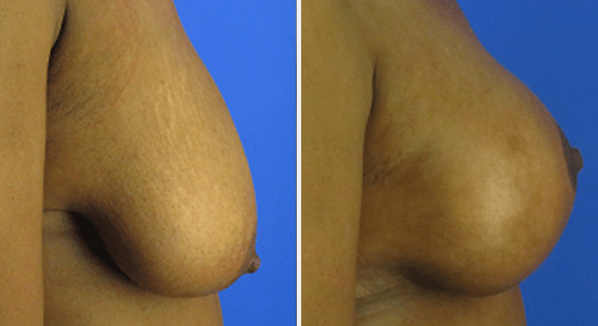 Before and After Breast Lift